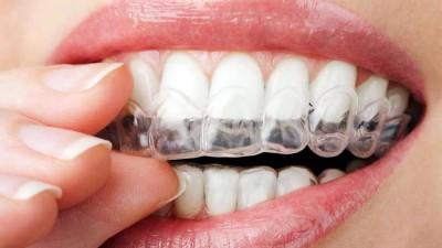 Argentinos desarrollaron ortodoncia con tecnología 3D
